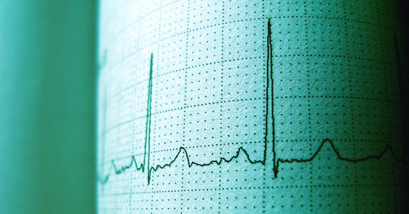 Heart rate monitor shows signs of life.